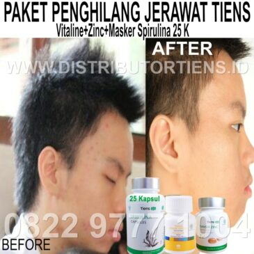 Paket Penghilang Jerawat Tiens | Vitaline + Zinc + Masker Spirulina